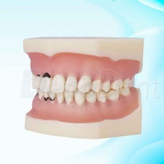 kit insertos Acteon Crow Extenxion